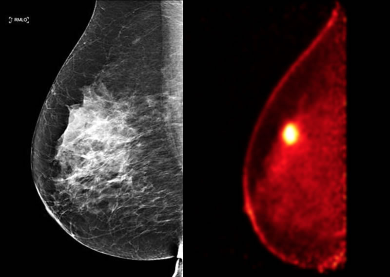 cancer pet breast scan and