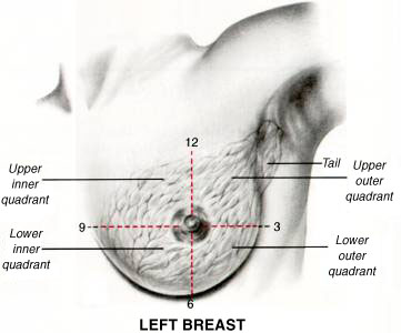 upper cancer right outer breast quadrant