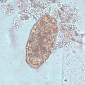 wet ascaris lumbricoides vaginal examination prep n