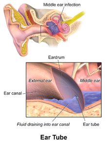 ear ventilation in adults tubes