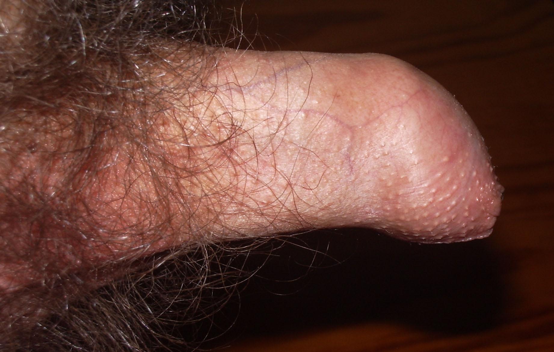 uncircumsized penis pain