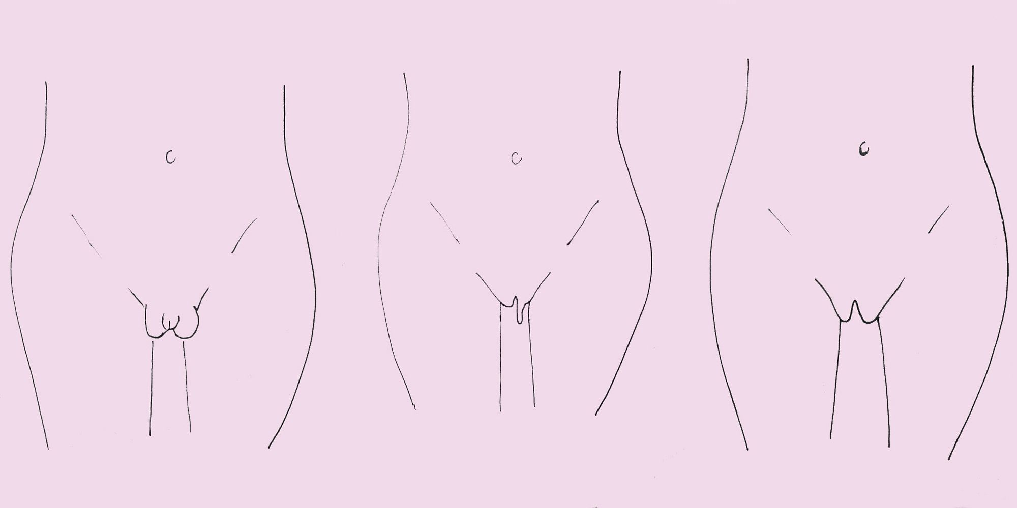 of different vaginas types pics the