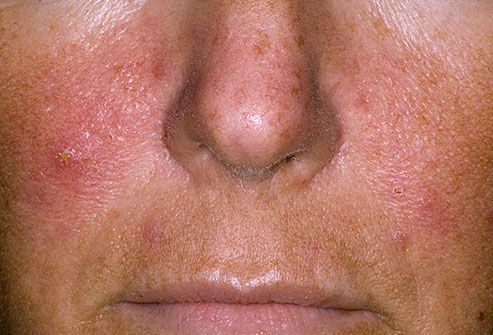 rashes adults on facial