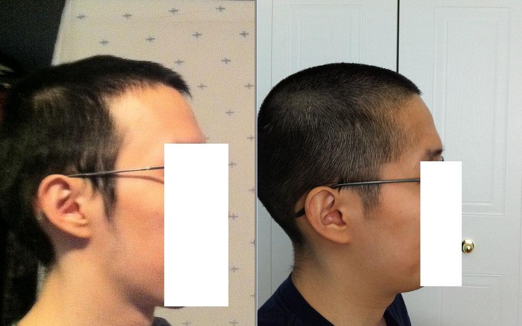 hair transexuals bald regrow
